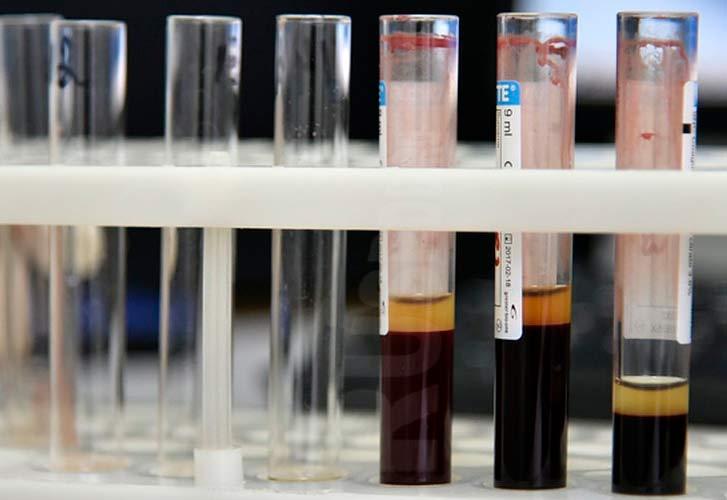 Анализ крови на алкоголь у водителей